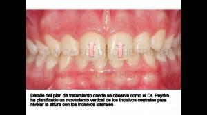 ortodoncia multidisciplinar con invisalig y carillas de composite