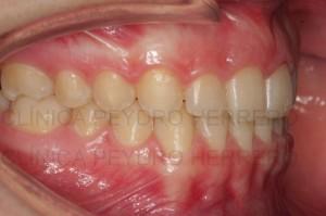 Ortodoncia multidisciplinar con Invisalign y carillas composite