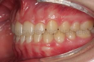 Ortodoncia multidisciplinar con Invisalign y carillas de composite