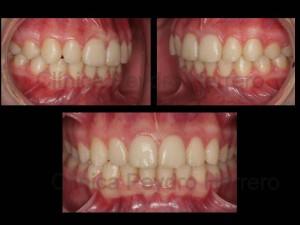ortodoncia_sin_extracciones