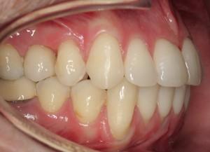 final_implante_corona_post_ortodoncia