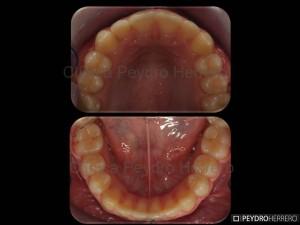 final_ortodoncia_paciente