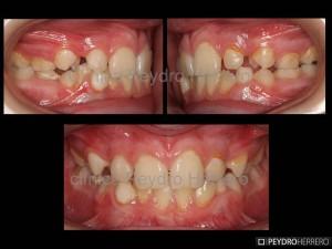 inicio_caso_ortodoncia