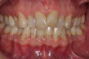 dientes-apiñados-falta-de-espacio