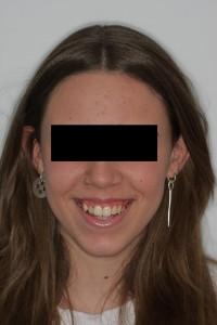 tratamiento-ortodoncia-antes