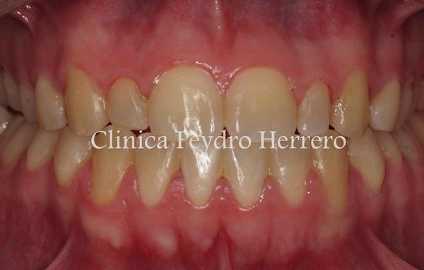 blanqueamiento-dental-valencia
