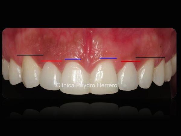 sonrisa-bonita-ortodoncia