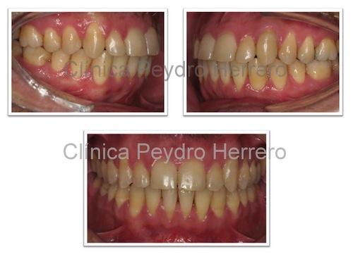 final-tratamiento-ortodoncia-canino-retenido