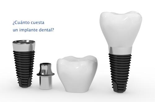 precio-implantes-dentales-valencia