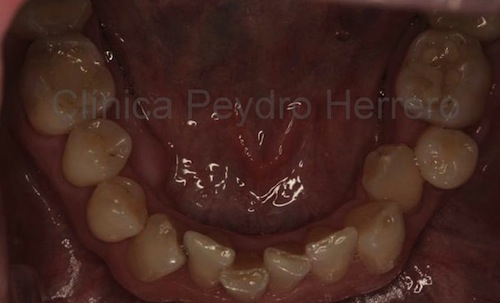 antes-ortodoncia
