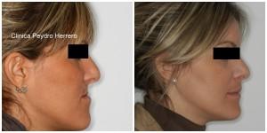 cirugia-ortognatica-valencia-ortodoncia.jpg