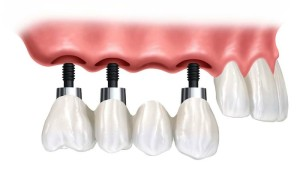 puentes-implantes-dentales