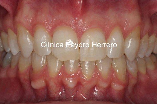 foto-post-ortodoncia-invisalign