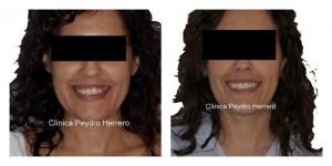 corregir sonrisa gingival sin cirugia