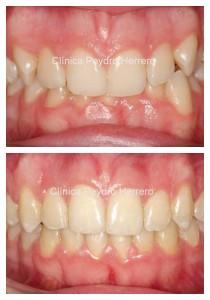Sonrisa gingival antes y despues