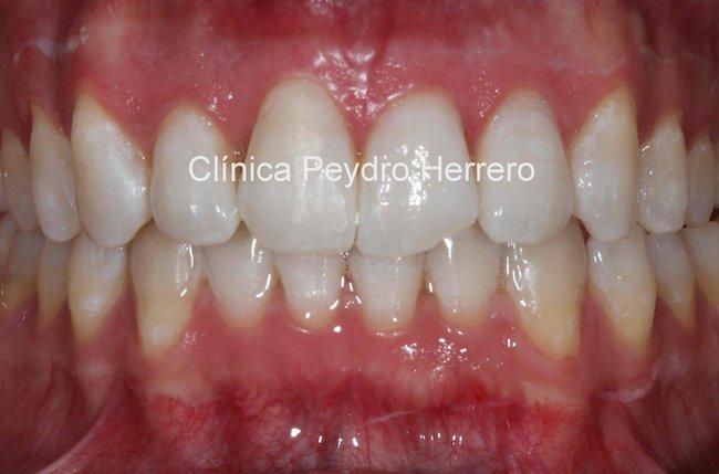 recontorneado-dental-antes