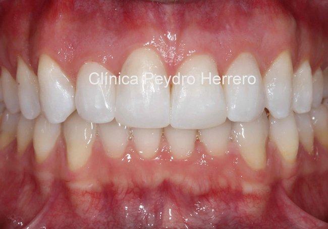 recontorneado-dental-despues