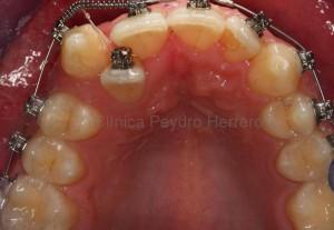 durante-ortodoncia-damon-sin-extraccion