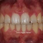 ortodoncia-invisalign-final