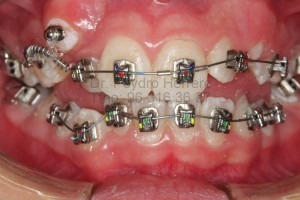 detalles-tratamiento-dental