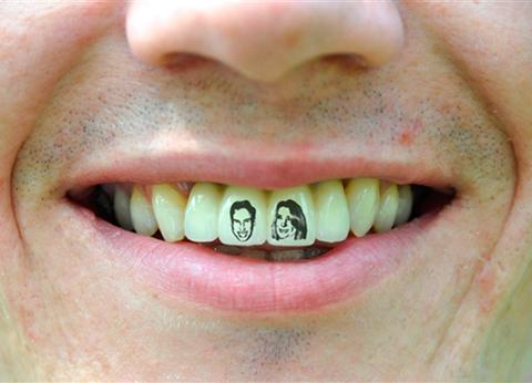 Tatuaje Dental O Tateeth Peligros De Ponerse Un Tatuaje En Los Dientes