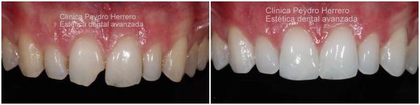 estetica-dental-antes-después