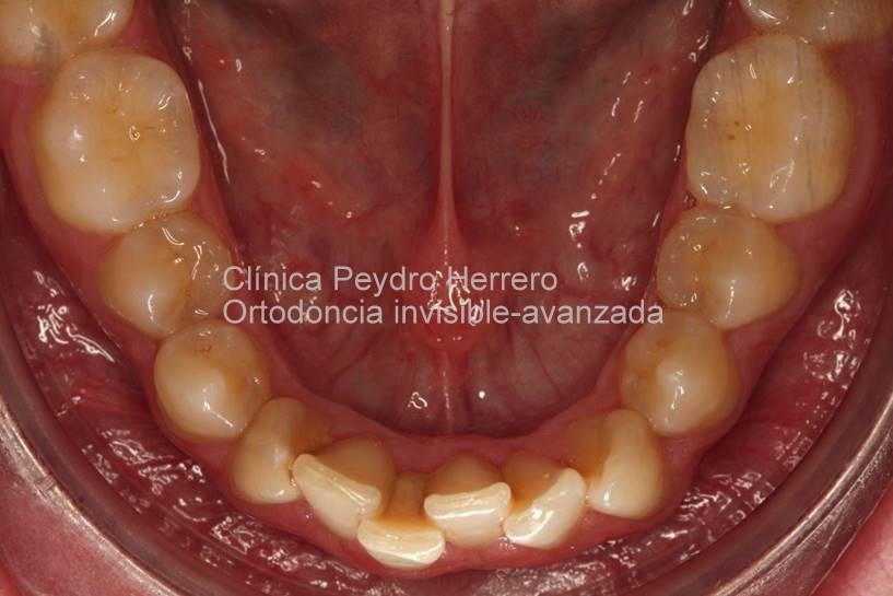 mandíbula-inicio