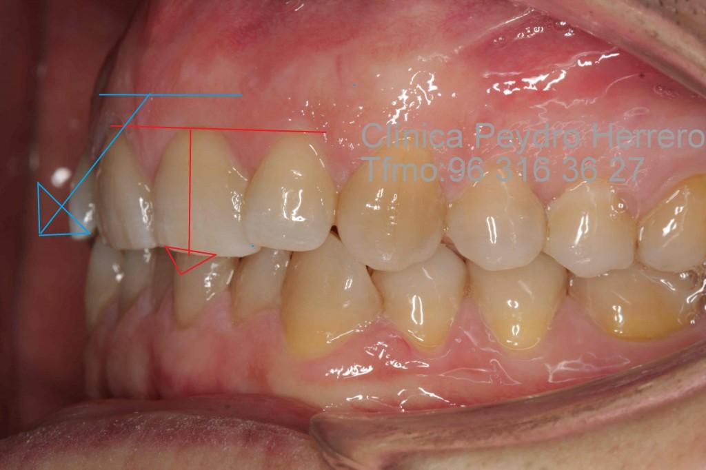 sonrisa-gingival-3