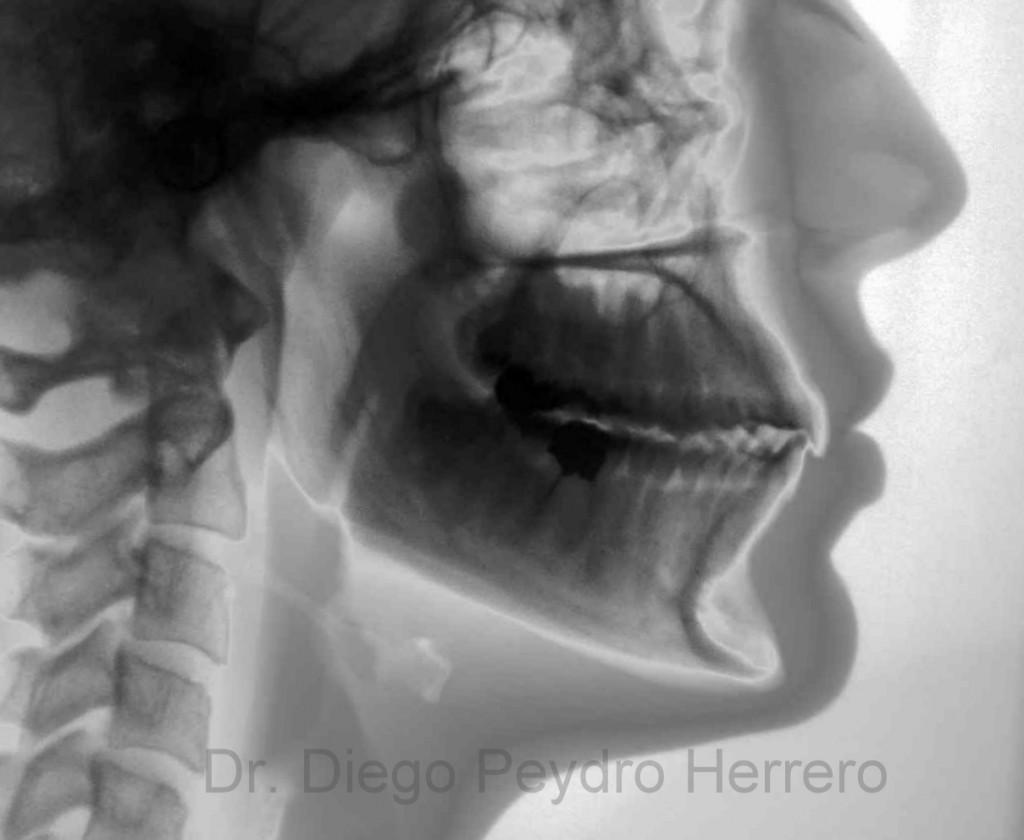 radiografia-lateral-craneo