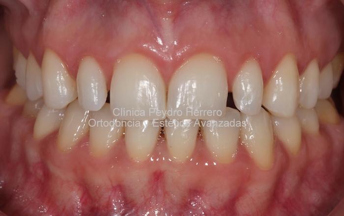 tras el blanqueamiento dental