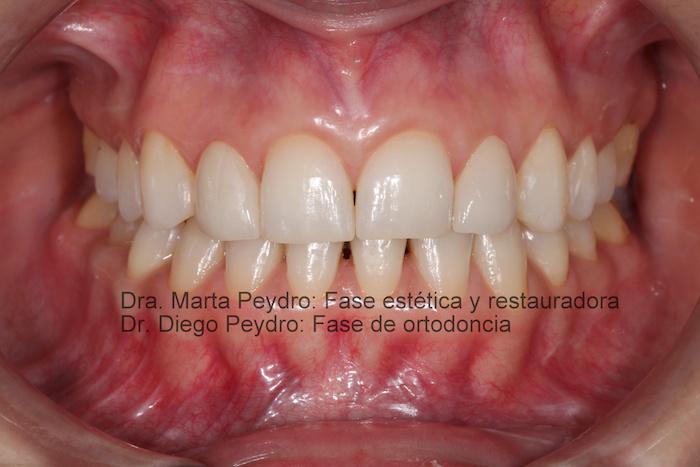 Ortodoncia y estética dental terminadas.tif