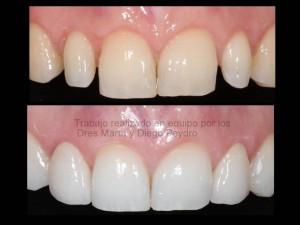 Antes y después de ortodoncia y estética dental