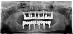 implantes-dentales-inmediatos