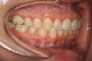 dolor-de-cabeza-y-dientes