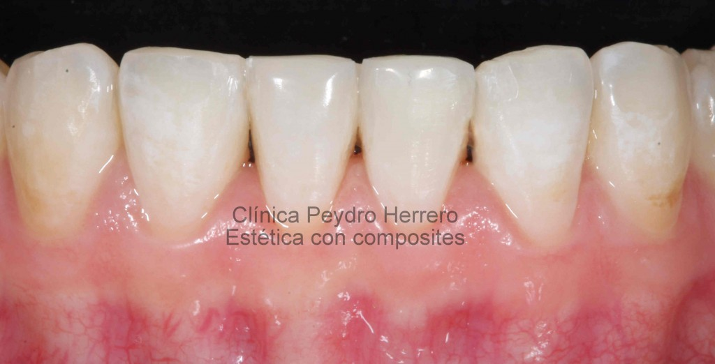 composites-de-alta-estetica-dental