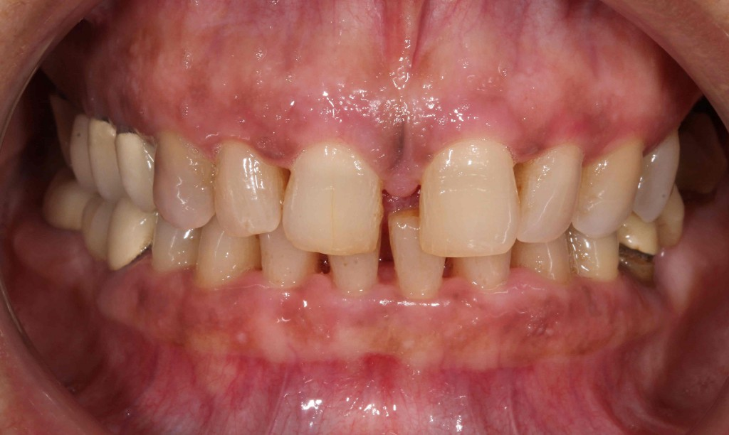 dientes-separados