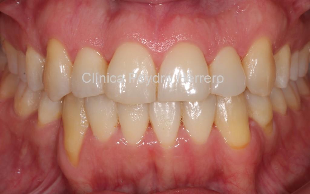 alta-estetica-dental
