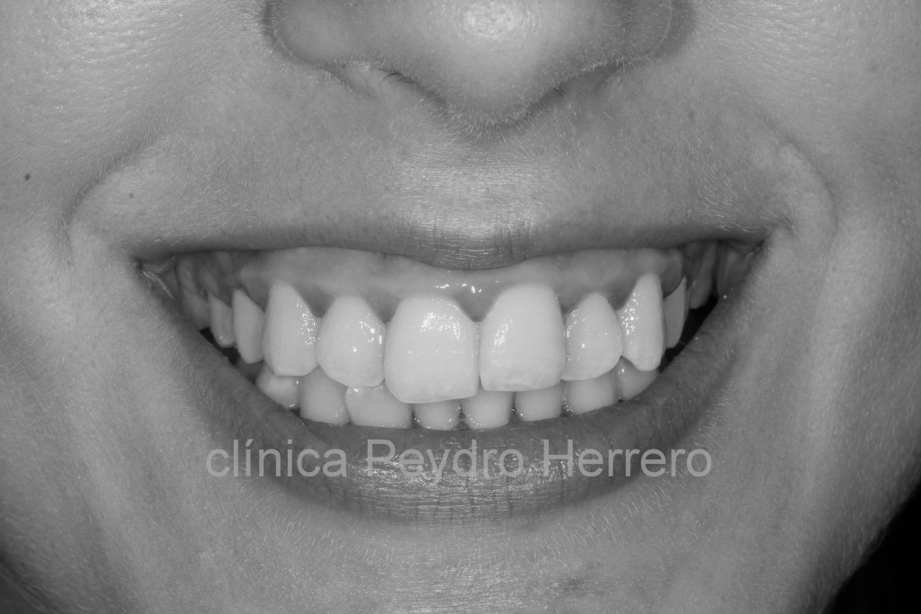 sonrisa-gingival