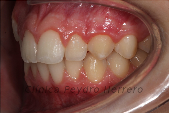 ortodoncia invisible invisalign teen
