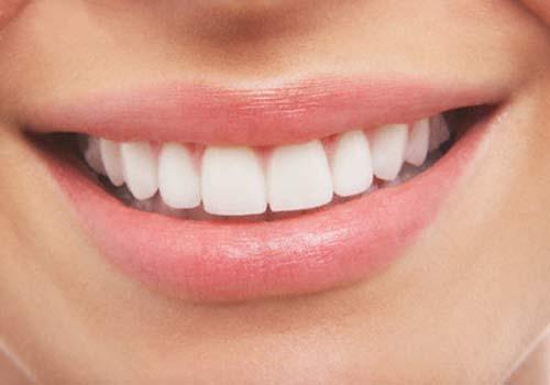 sonrisa-sana