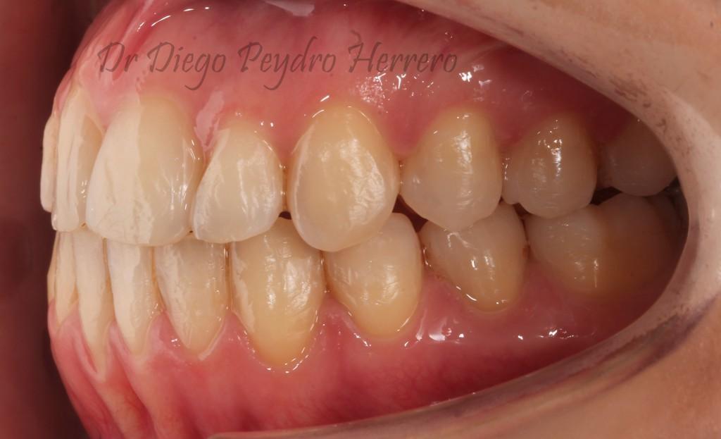 ortodoncia sin extracciones