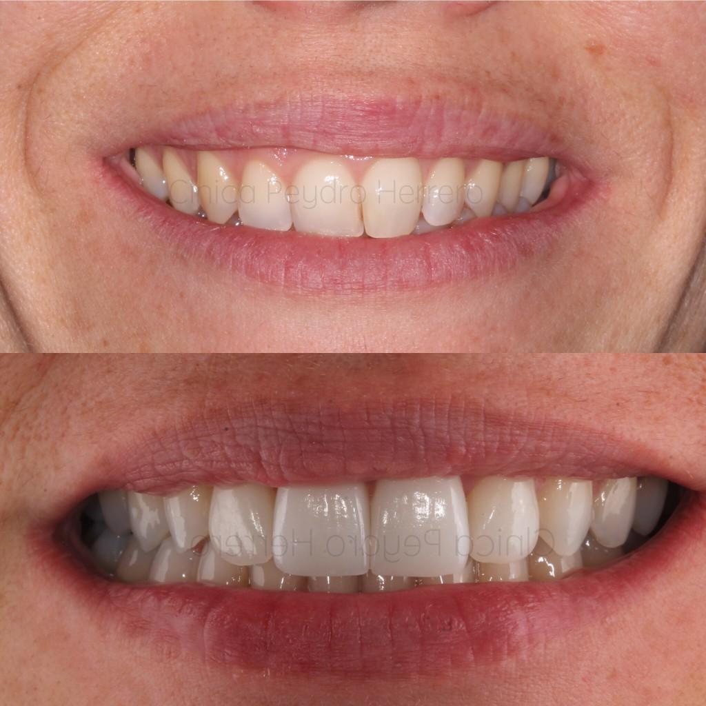 dismorfismo dental