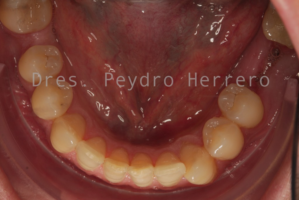 Antes de la ortodoncia e implantes