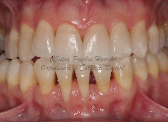 dientes en recien nacidos