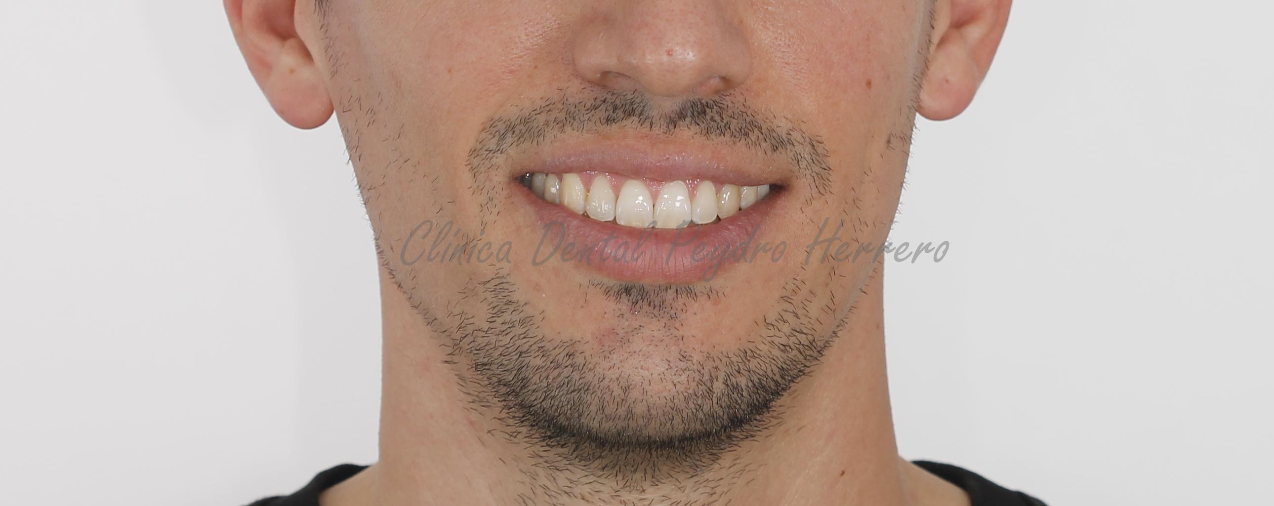 ortodoncia invisible valencia