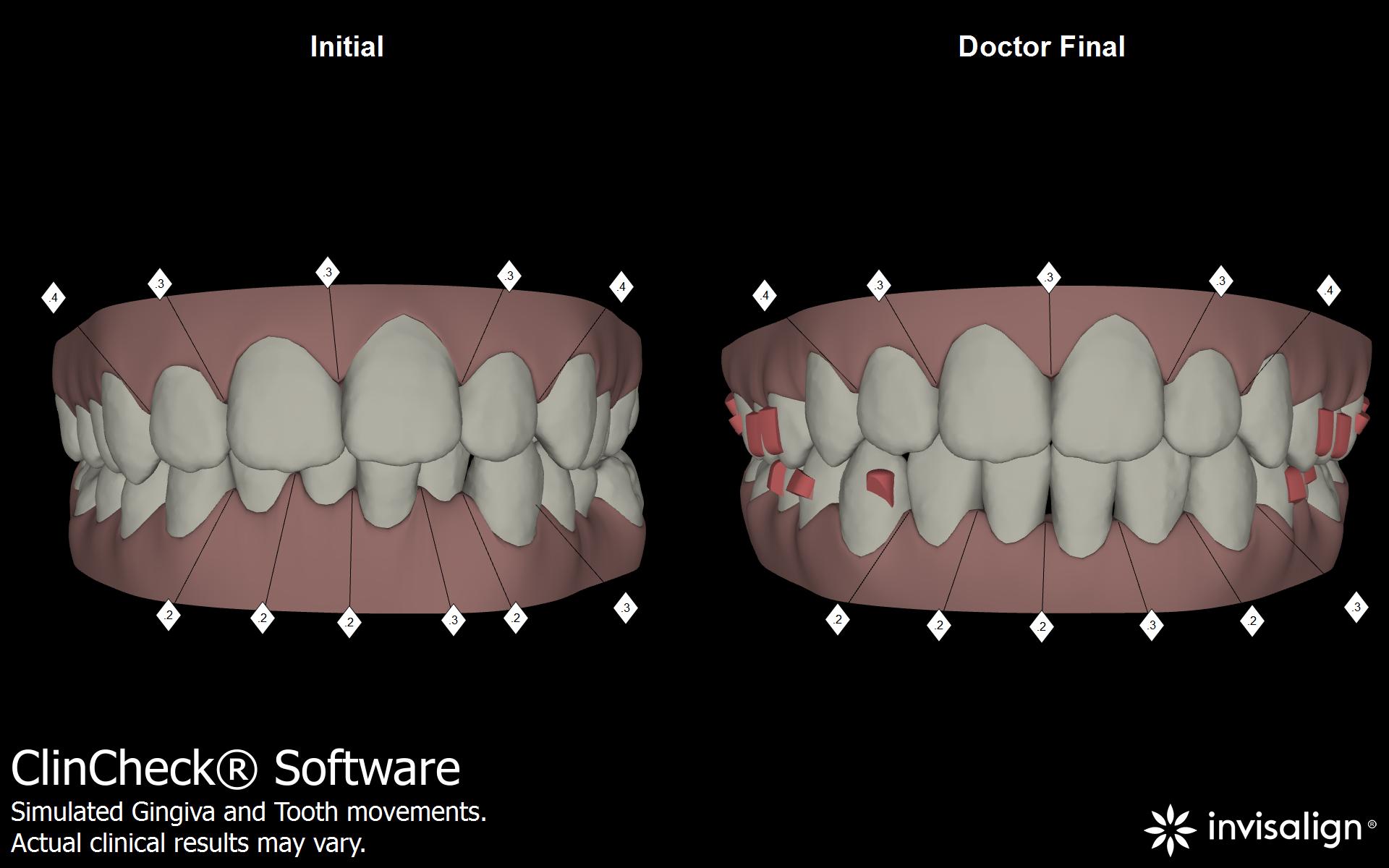 detalles de la planificacion del Dr Diego Peydro en el diseño de sonrisa