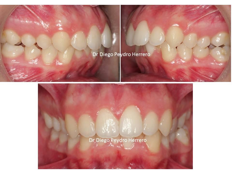 sonrisa gingival ortodoncia invisible