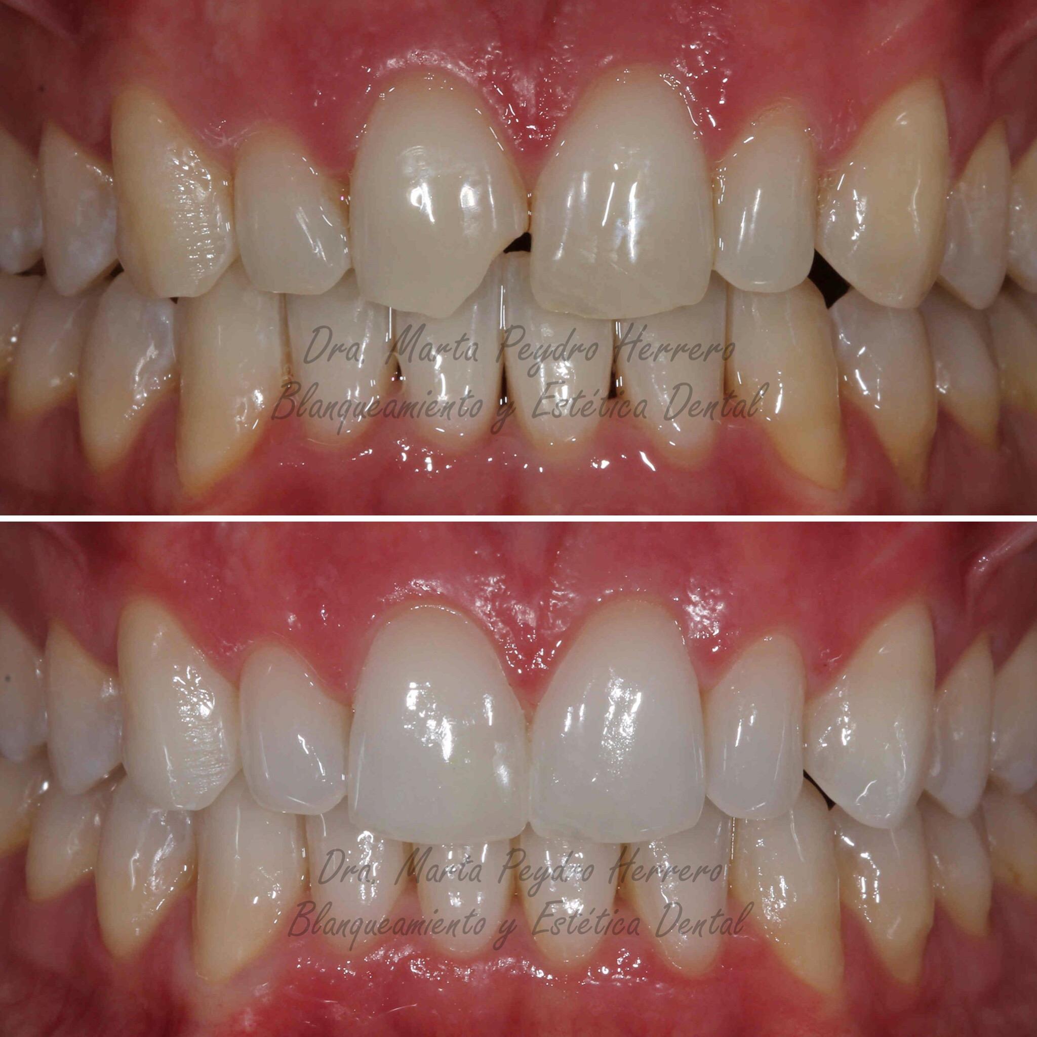 tratamiento-de-blanqueamiento-dental