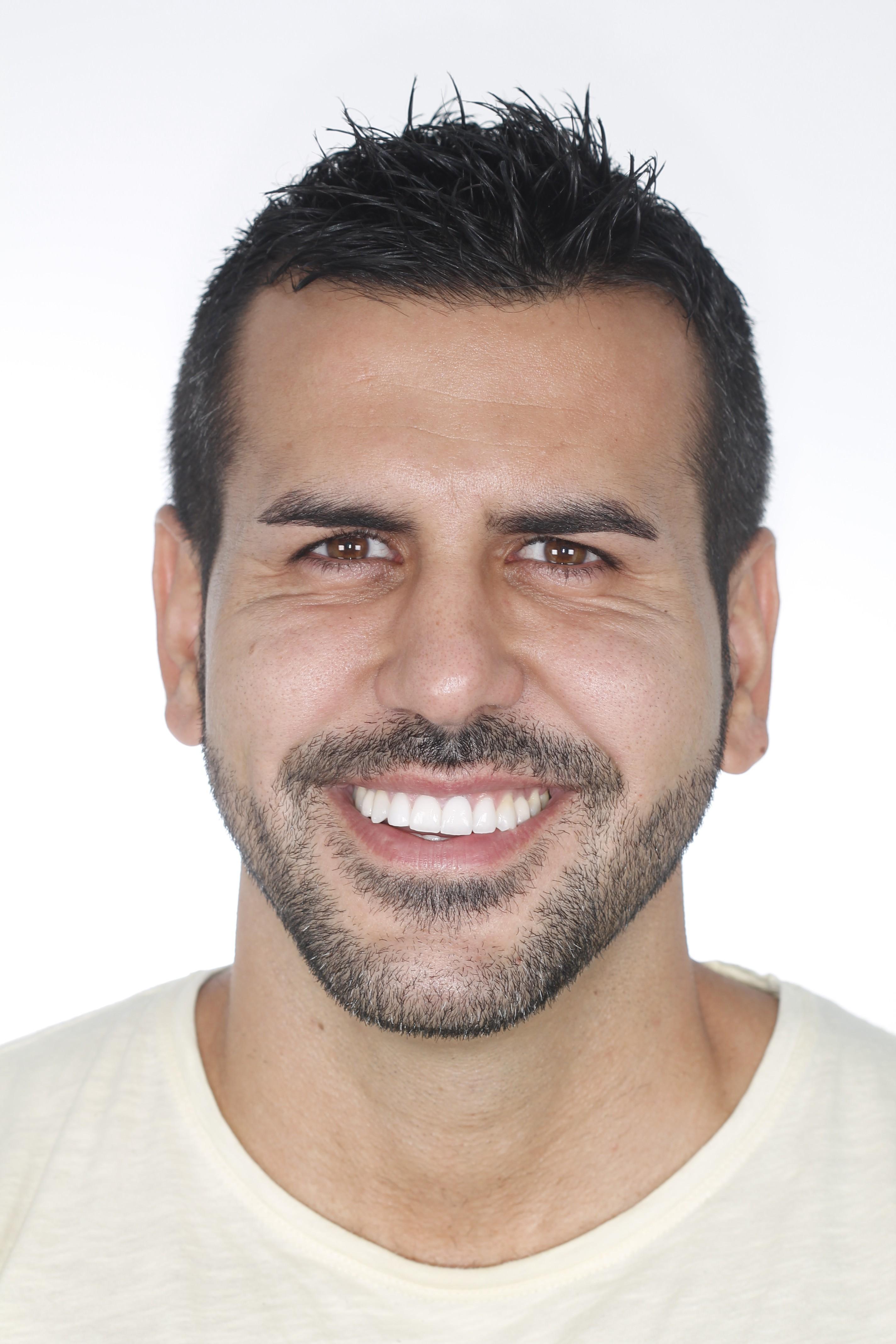 testimonio ortodoncia peydro