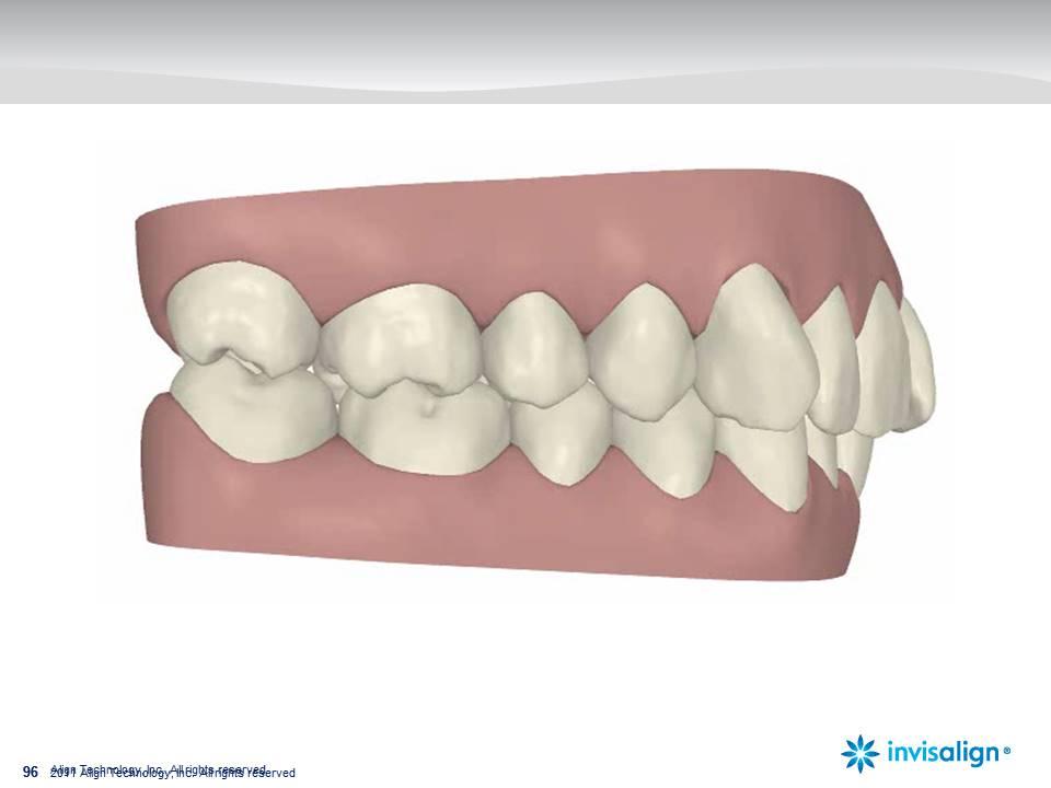 tratamiento de ortodoncia invisalign